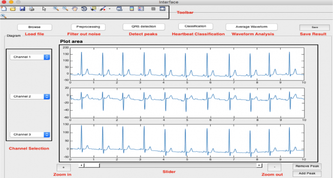 Projects:2015s2-210 Automated Classification of Heartbeats